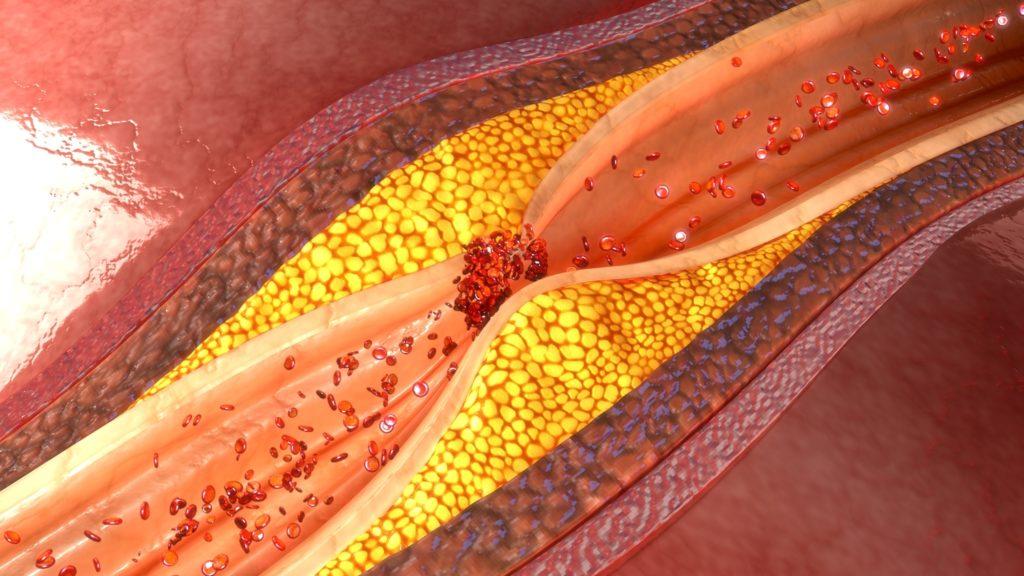 arteriosclorosis y cannabis