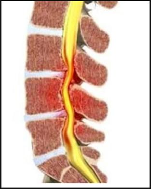 lumbalgia-ciatica-dolor-espalda