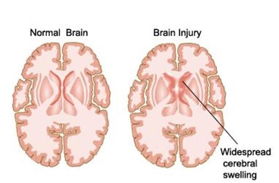 Brain injury produced by an acute event, such as CVA or TBI