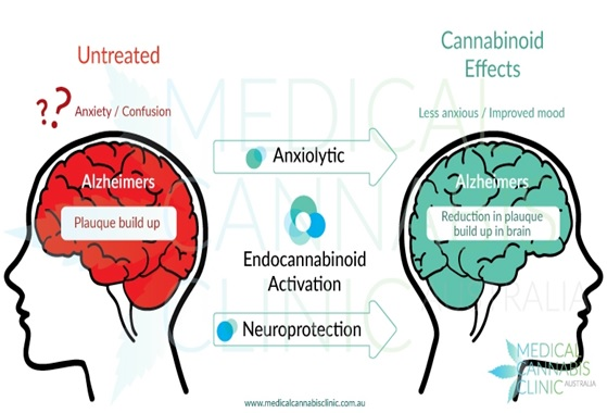 alzheimers treatment effects